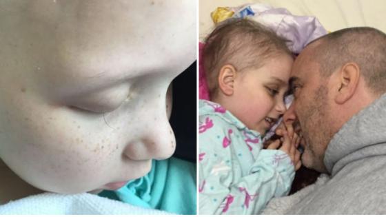 Πατέρας φωτογράφησε την τελευταία βλεφαρίδα της κόρης του που έπασχε από καρκίνο (ΦΩΤΟ)