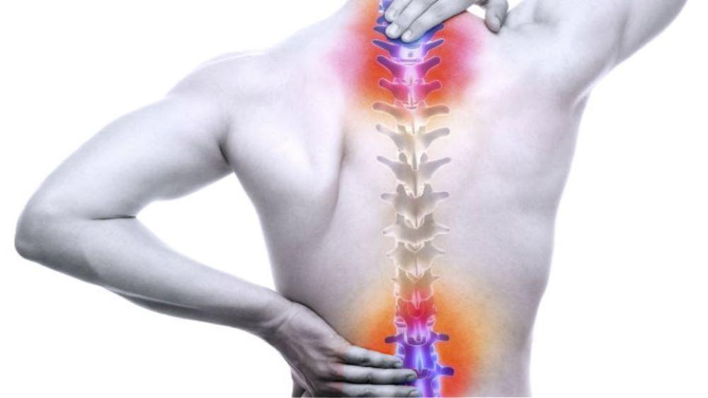 Μικροσκοπικό εμφύτευμα σπονδυλικής στήλης καταπολεμά τους σοβαρούς πόνους